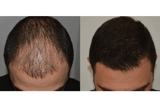 Los Angeles Hair Transplant Clinic